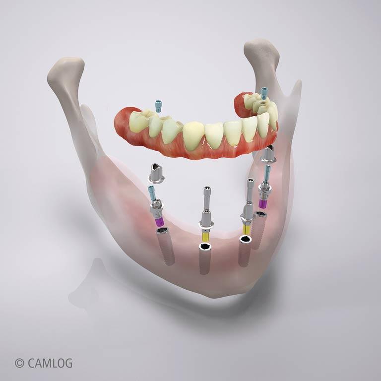 Zahnimplantate Dortmund - Zahnarztpraxis Bouhjar
